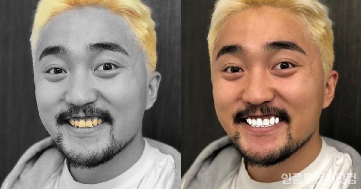 """치과의사가 공개한 '누렁니' 탈출법...""""하얀 치아, 이것만 잘하면 된다"""""""